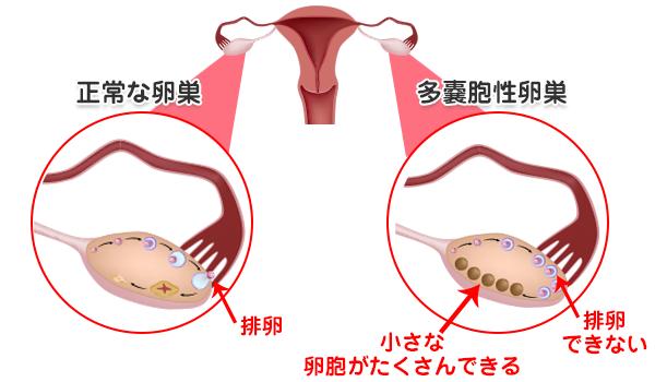 多 ほう 性 卵巣 症
